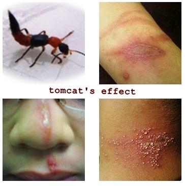 Gambar serangga tomcat dan dak nya jika cairan toksin nya terkena